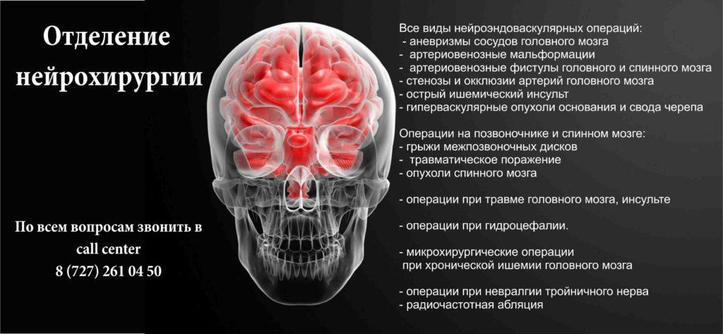 нейрохирургия